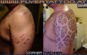 Tattoo Keloide Coverup